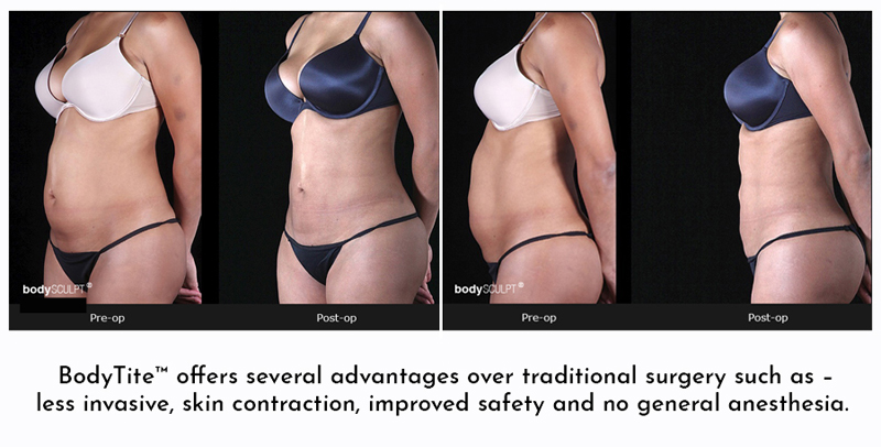 Before and After Photos Bodytite Liposuction Frequently Asked Questions