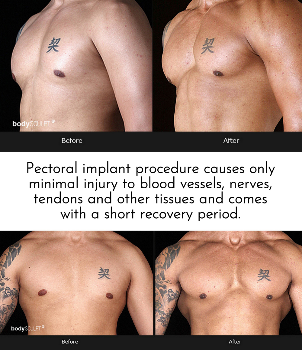 Chest Implants for Men - What You Need to Know
